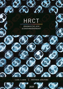 HRCT - diagnostik och sjukdomsöversikt (e-bok)